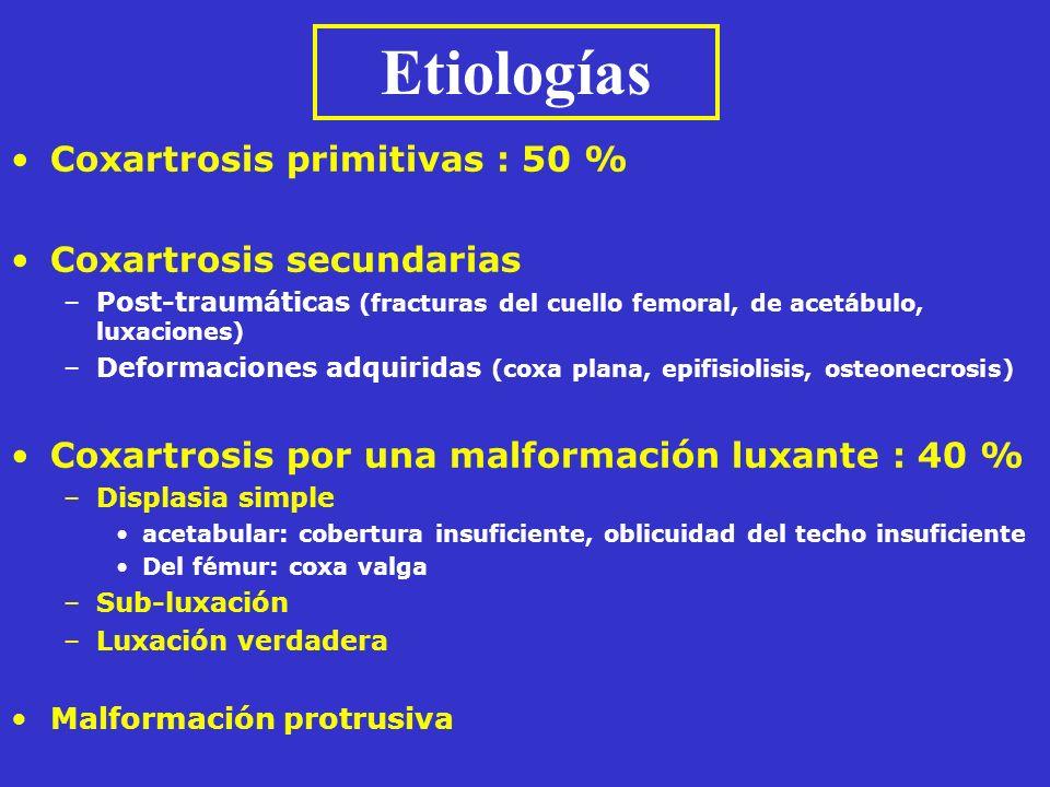 Etiologías Coxartrosis primitivas : 50 % Coxartrosis secundarias