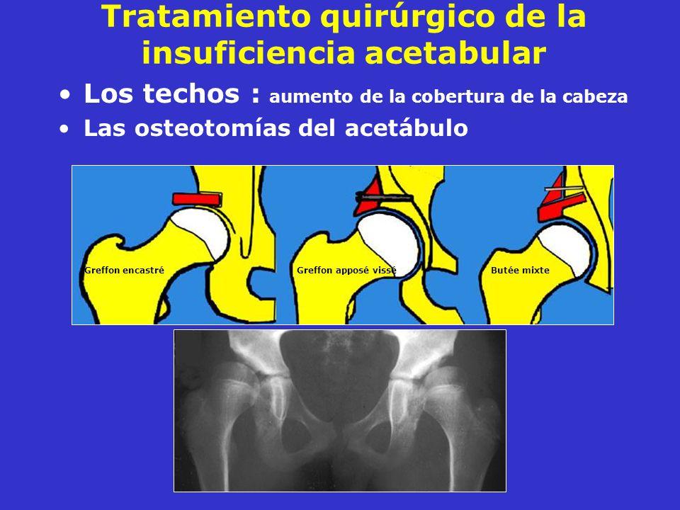 Tratamiento quirúrgico de la insuficiencia acetabular