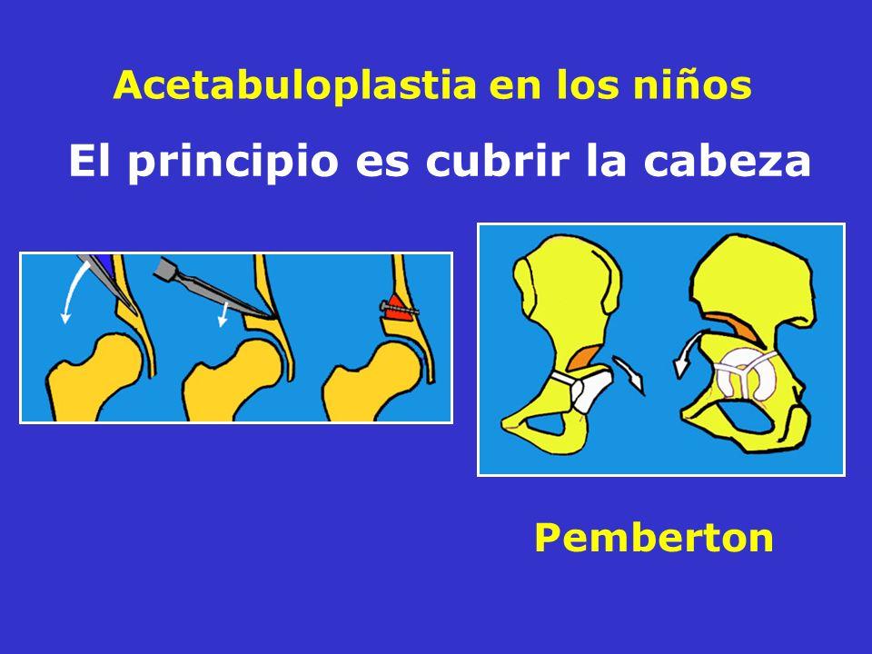 Acetabuloplastia en los niños