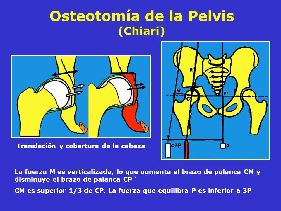 Osteotomía de la Pelvis (Chiari)