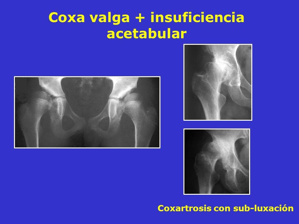 Coxa valga + insuficiencia acetabular