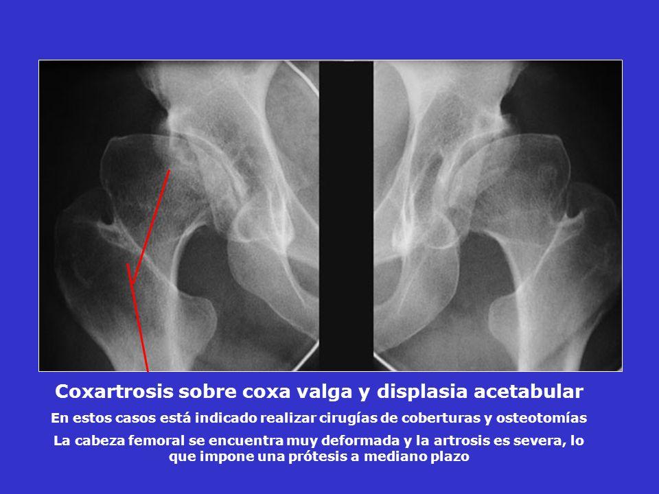 Coxartrosis sobre coxa valga y displasia acetabular