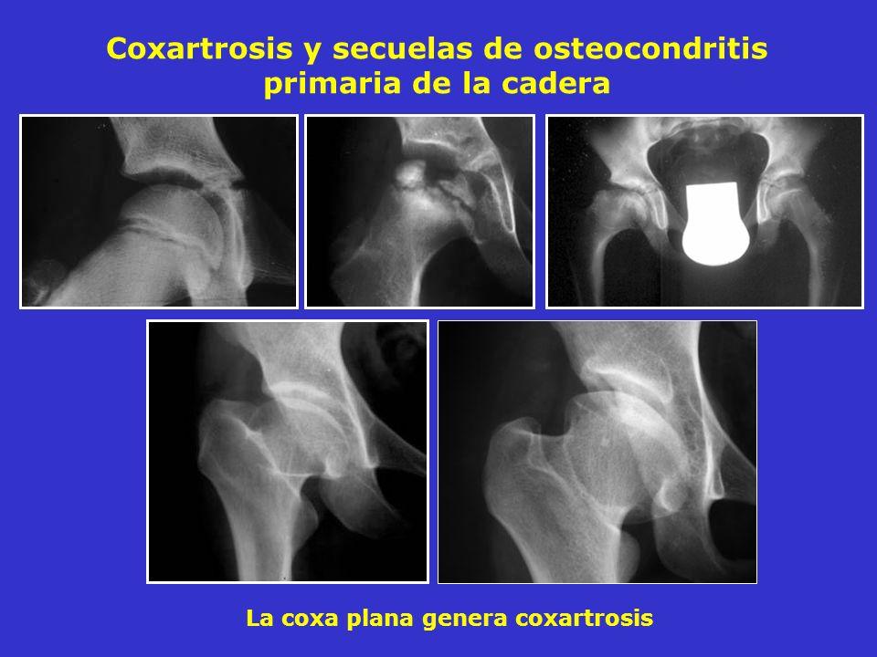 Coxartrosis y secuelas de osteocondritis primaria de la cadera