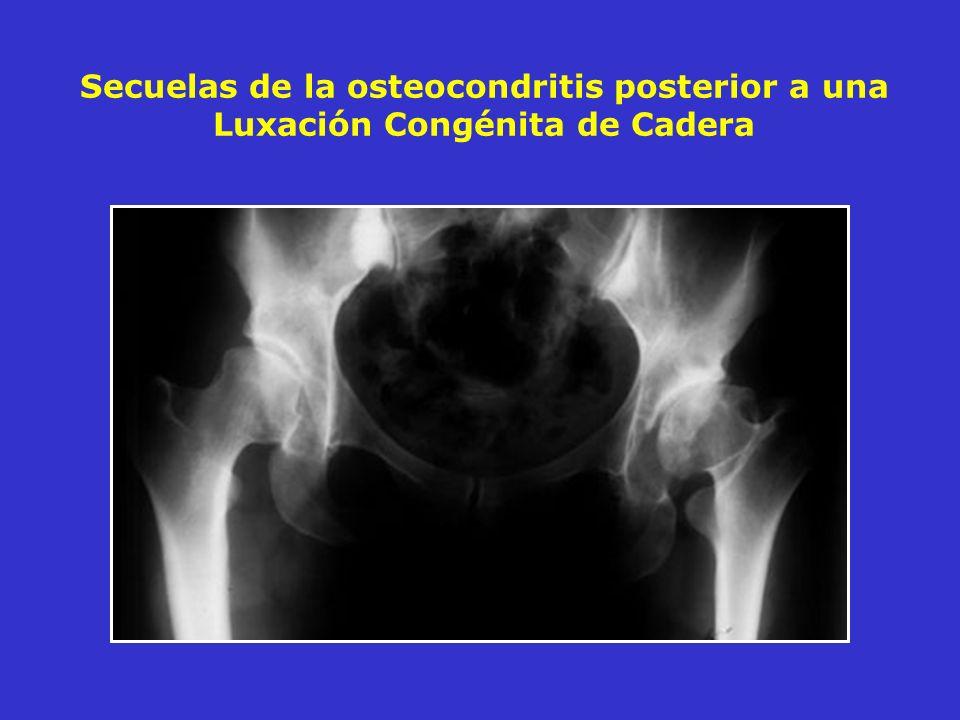 Secuelas de la osteocondritis posterior a una Luxación Congénita de Cadera