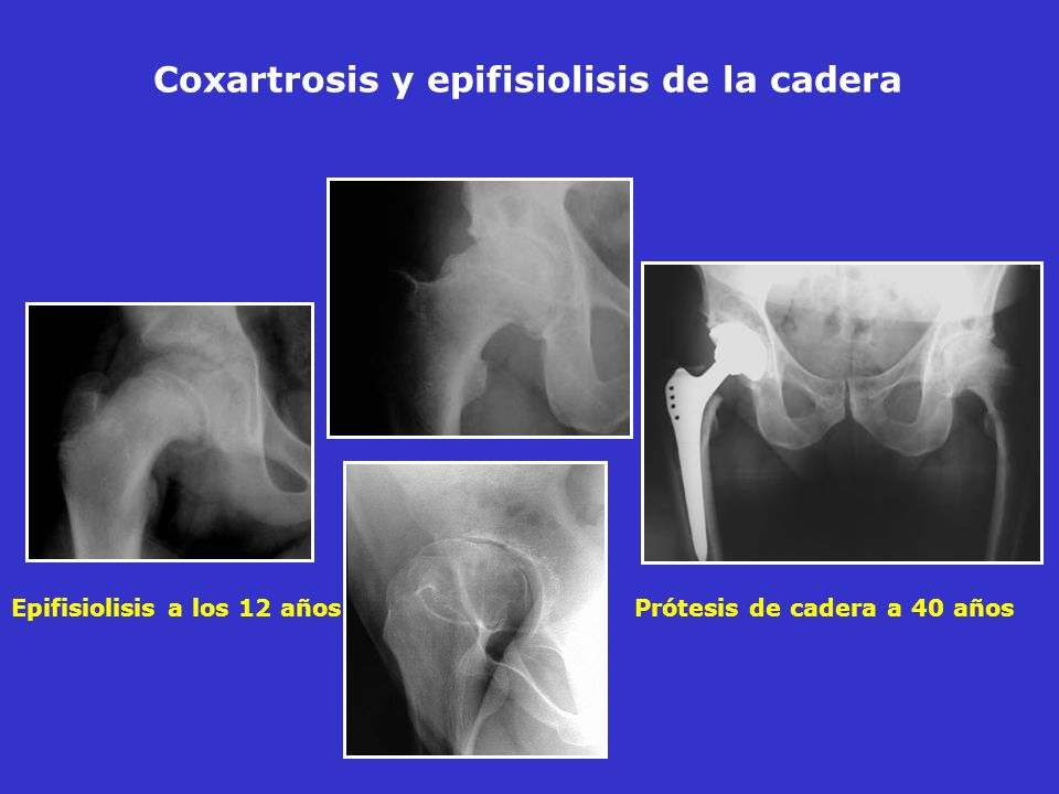 Epifisiolisis a los 12 años Prótesis de cadera a 40 años