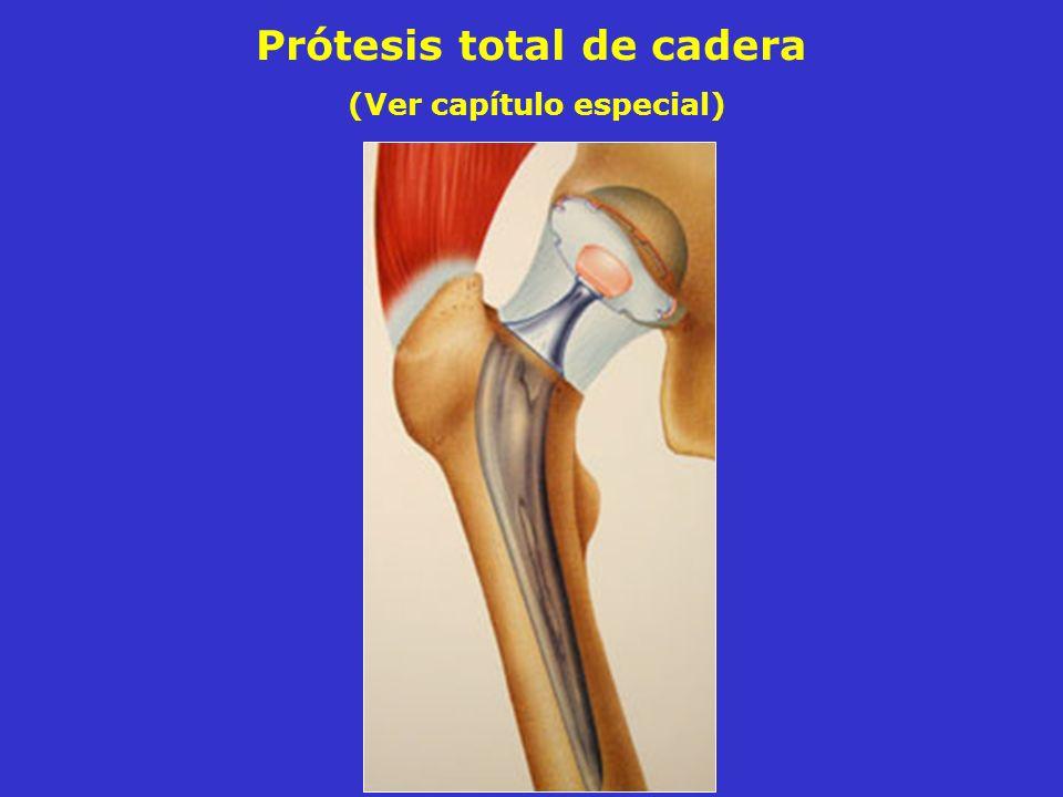 Prótesis total de cadera (Ver capítulo especial)