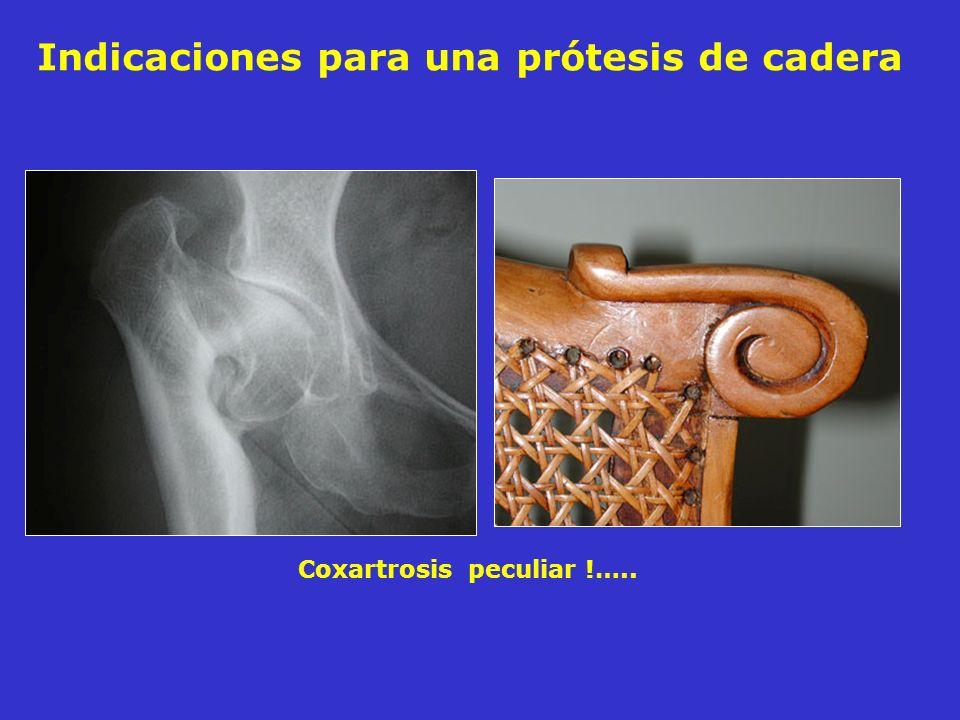 Indicaciones para una prótesis de cadera Coxartrosis peculiar !…..