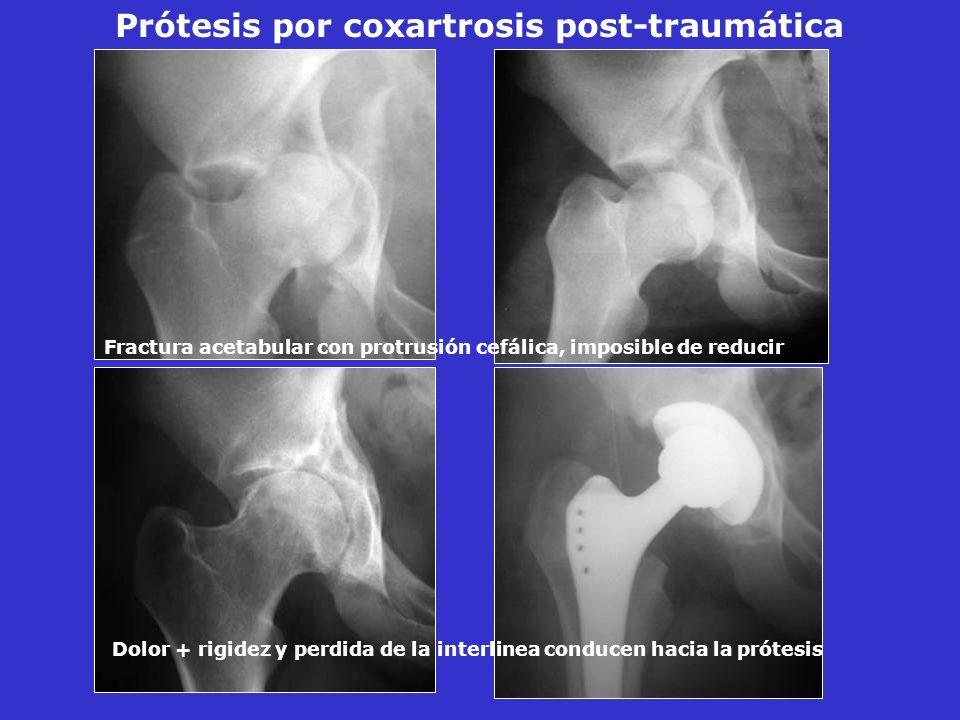 Prótesis por coxartrosis post-traumática