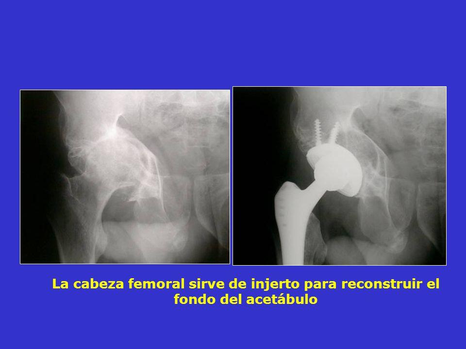 La cabeza femoral sirve de injerto para reconstruir el fondo del acetábulo