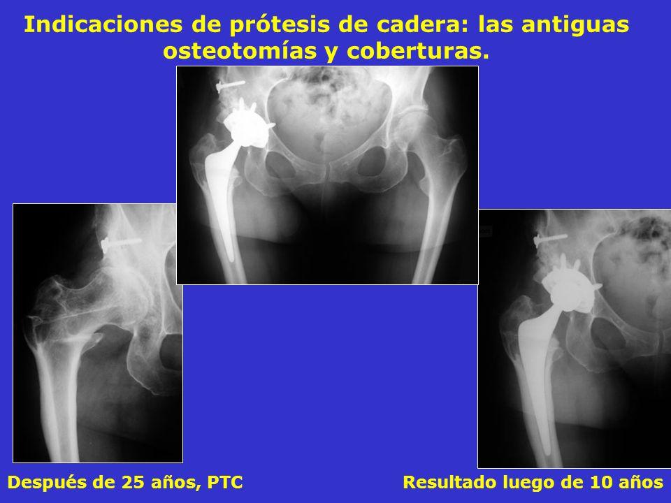 Indicaciones de prótesis de cadera: las antiguas osteotomías y coberturas.
