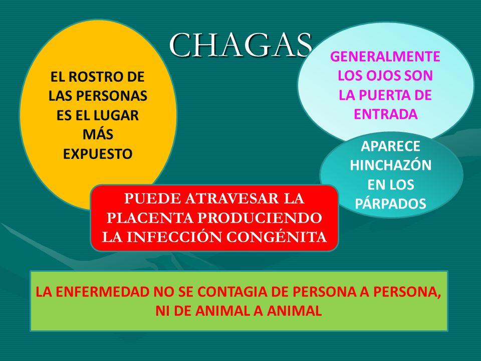 CHAGAS GENERALMENTE LOS OJOS SON LA PUERTA DE ENTRADA
