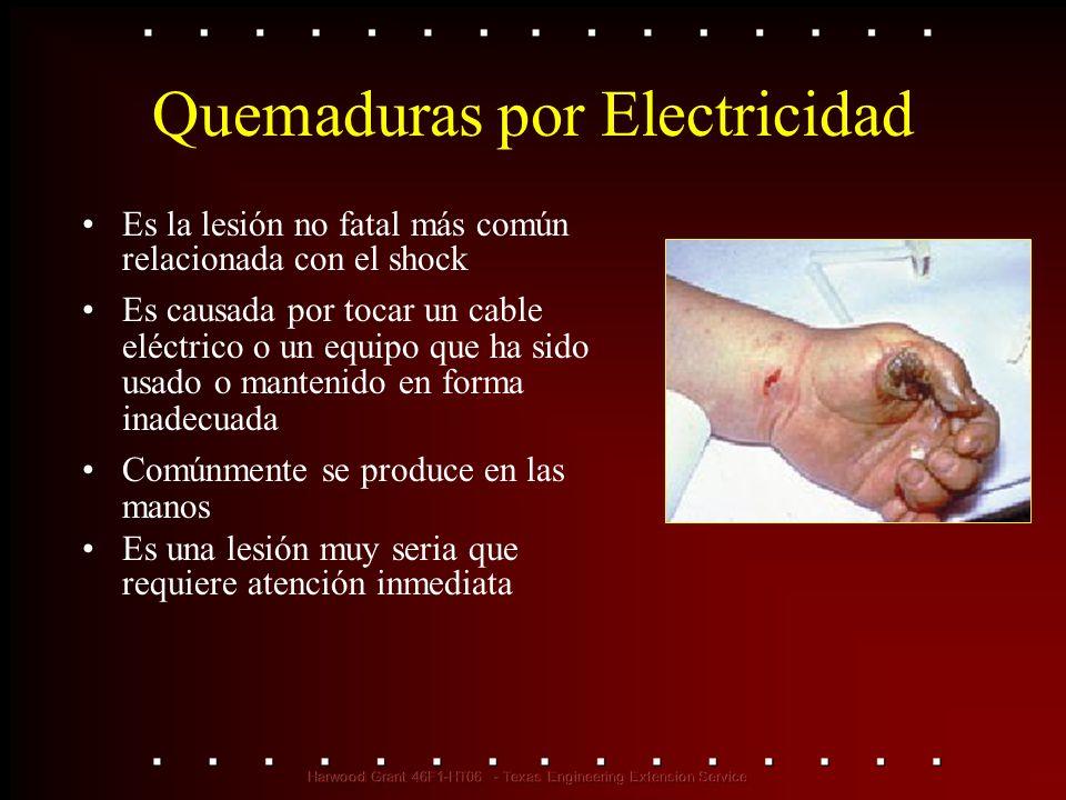 Quemaduras por Electricidad