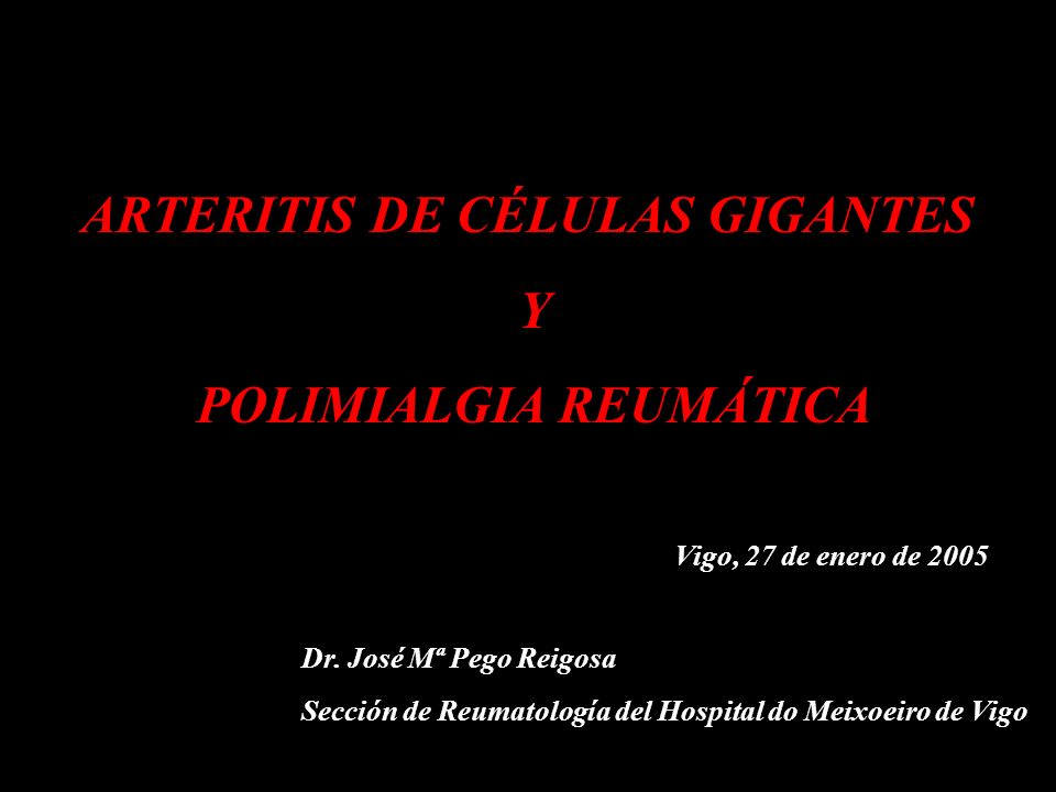ARTERITIS DE CÉLULAS GIGANTES POLIMIALGIA REUMÁTICA