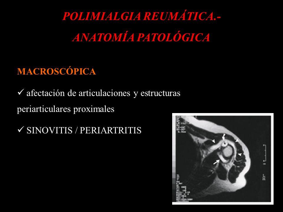 POLIMIALGIA REUMÁTICA.-