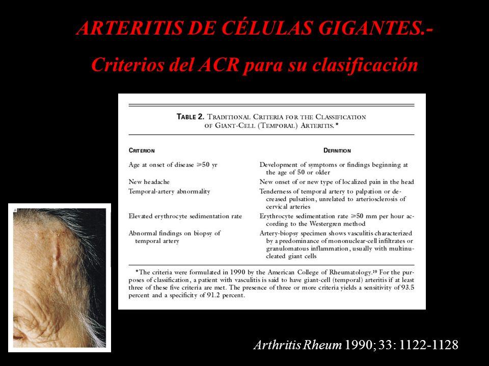 ARTERITIS DE CÉLULAS GIGANTES.-