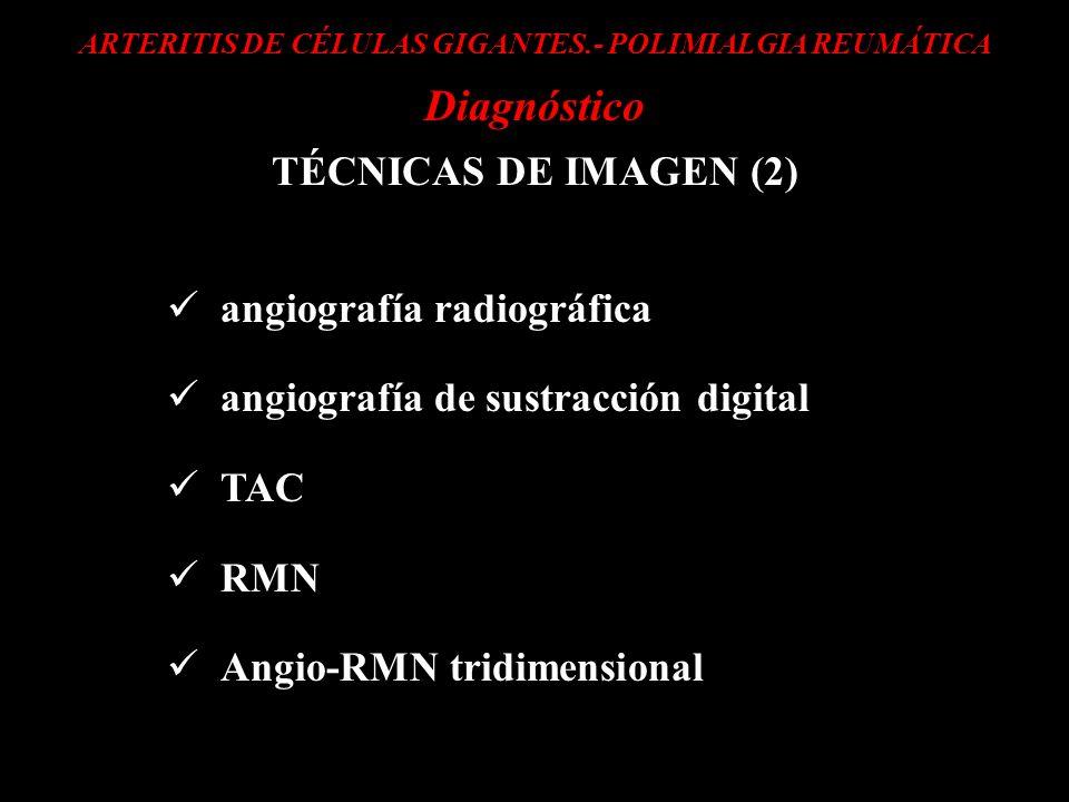 ARTERITIS DE CÉLULAS GIGANTES.- POLIMIALGIA REUMÁTICA
