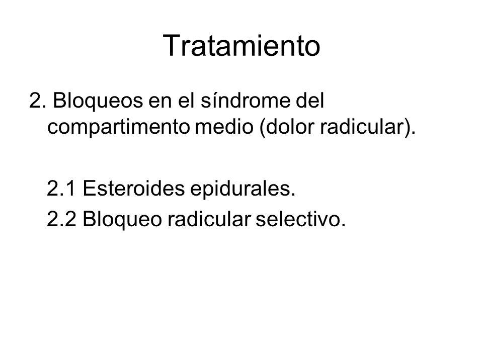 Tratamiento 2. Bloqueos en el síndrome del compartimento medio (dolor radicular). 2.1 Esteroides epidurales.