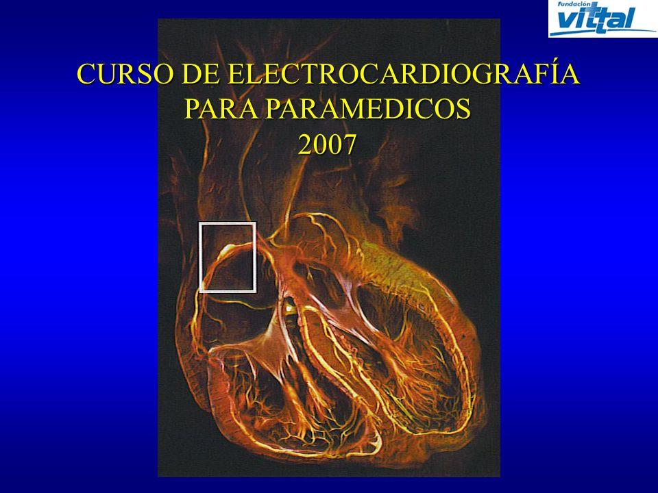 CURSO DE ELECTROCARDIOGRAFÍA