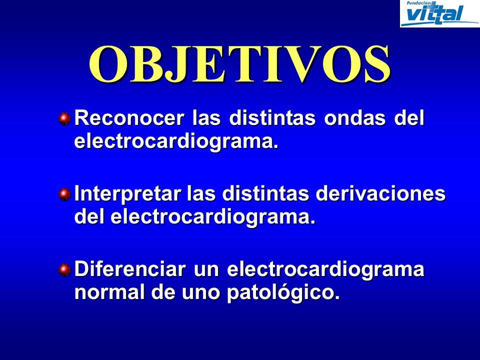 OBJETIVOS Reconocer las distintas ondas del electrocardiograma.