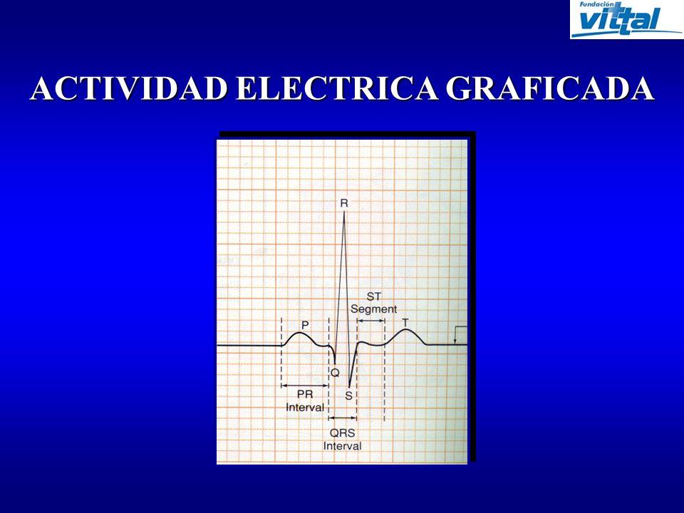 ACTIVIDAD ELECTRICA GRAFICADA