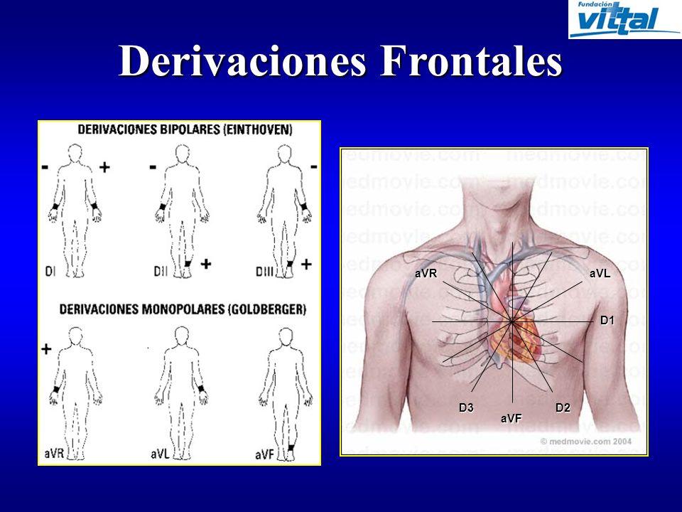 Derivaciones Frontales