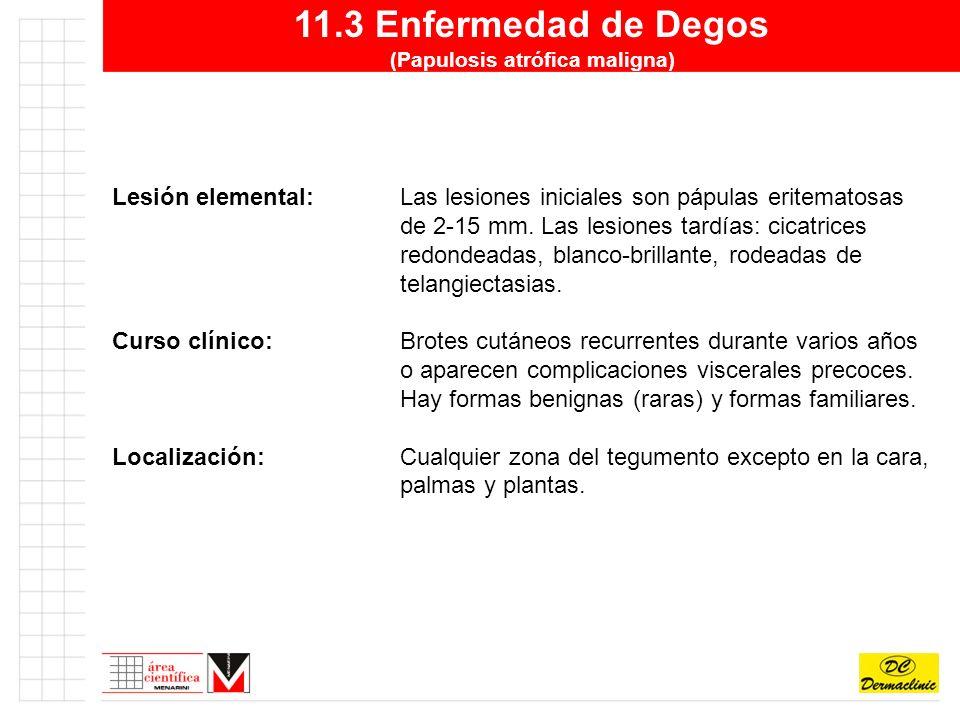 11.3 Enfermedad de Degos (Papulosis atrófica maligna)