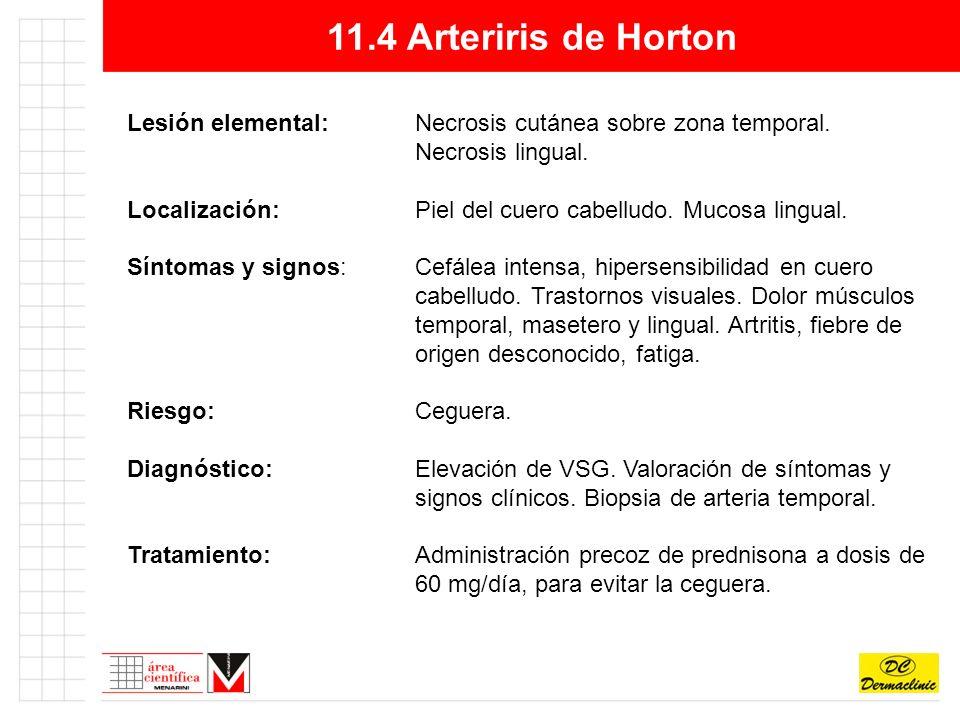 11.4 Arteriris de Horton Lesión elemental: Necrosis cutánea sobre zona temporal. Necrosis lingual.