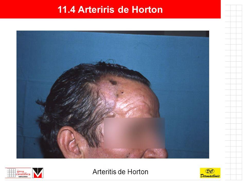 11.4 Arteriris de Horton Arteritis de Horton