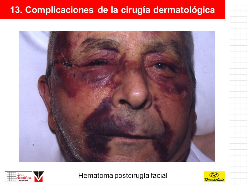 13. Complicaciones de la cirugía dermatológica