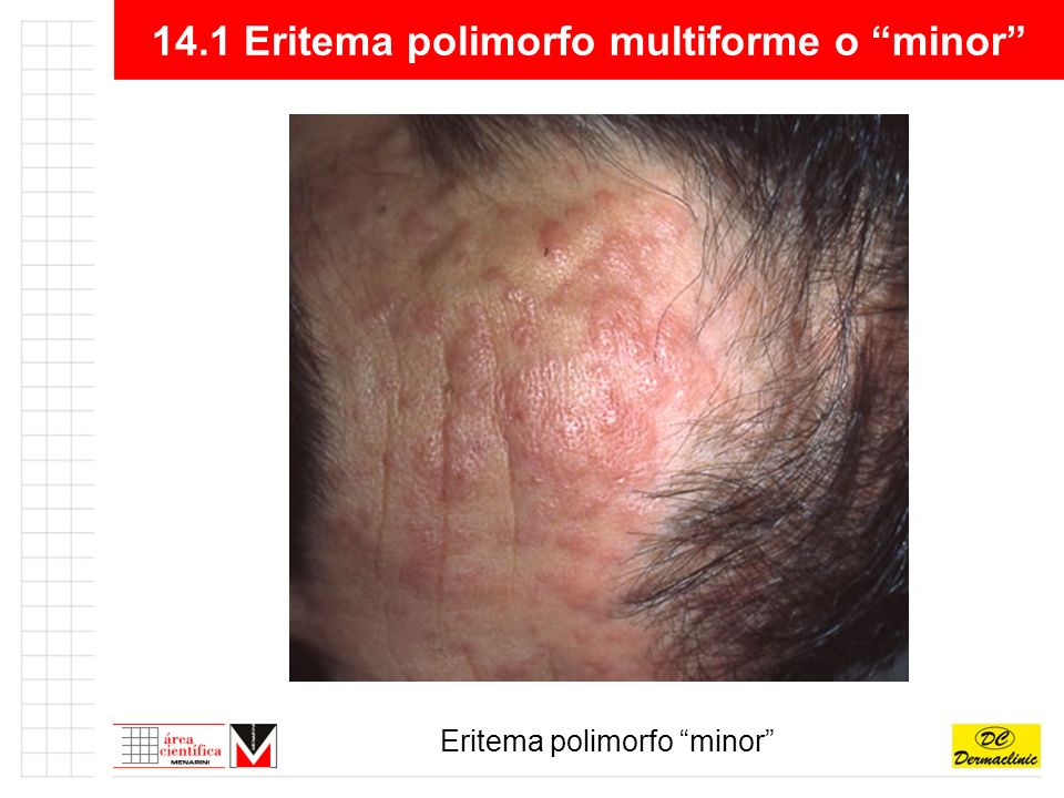 14.1 Eritema polimorfo multiforme o minor