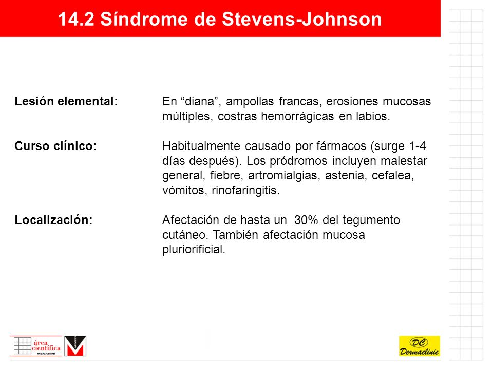 14.2 Síndrome de Stevens-Johnson