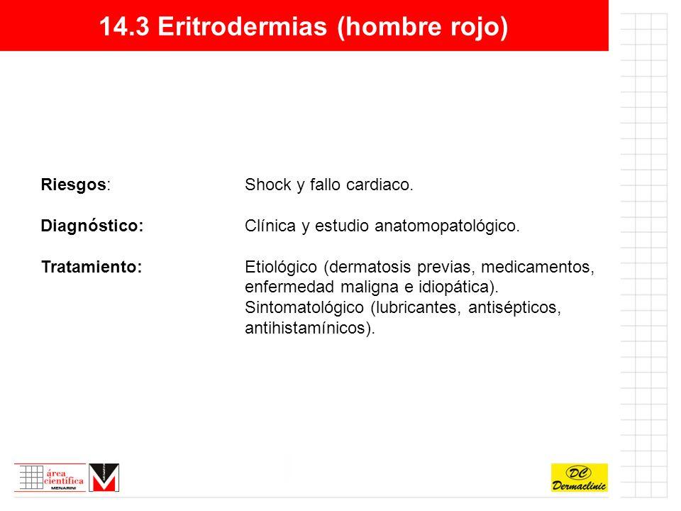 14.3 Eritrodermias (hombre rojo)