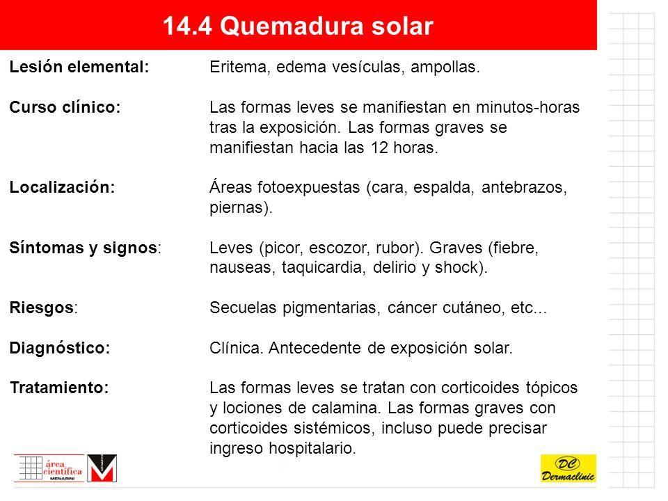 14.4 Quemadura solar Lesión elemental: Eritema, edema vesículas, ampollas.