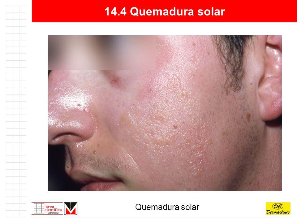 14.4 Quemadura solar Quemadura solar