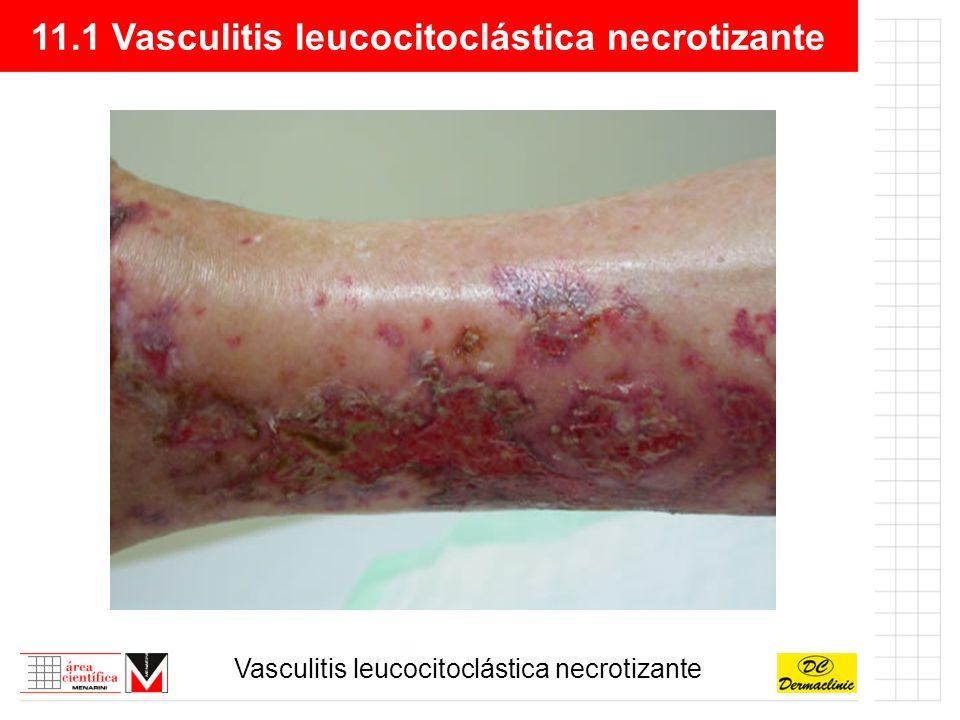 11.1 Vasculitis leucocitoclástica necrotizante