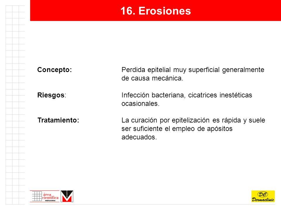 16. Erosiones Concepto: Perdida epitelial muy superficial generalmente de causa mecánica.