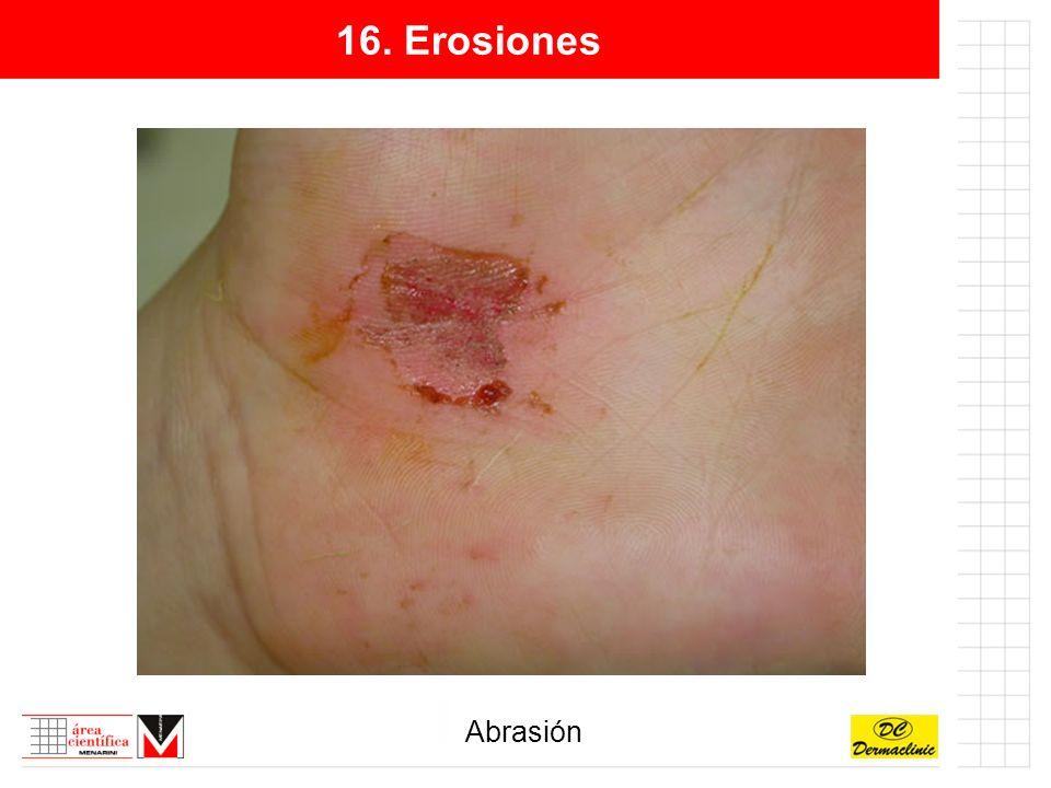 16. Erosiones Abrasión