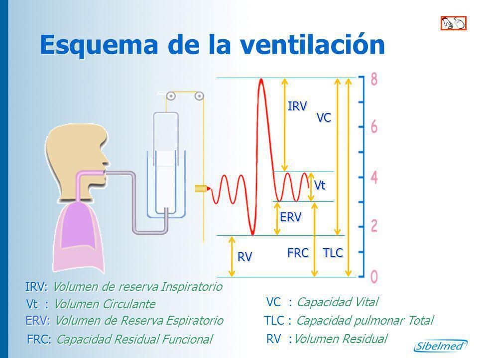 Esquema de la ventilación