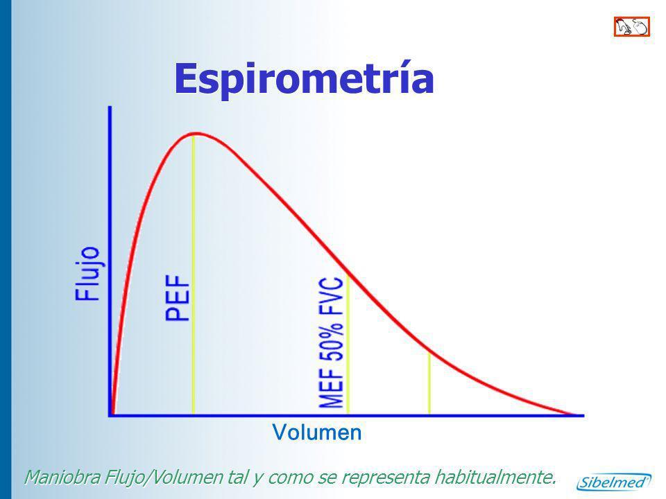 Maniobra Flujo/Volumen tal y como se representa habitualmente.
