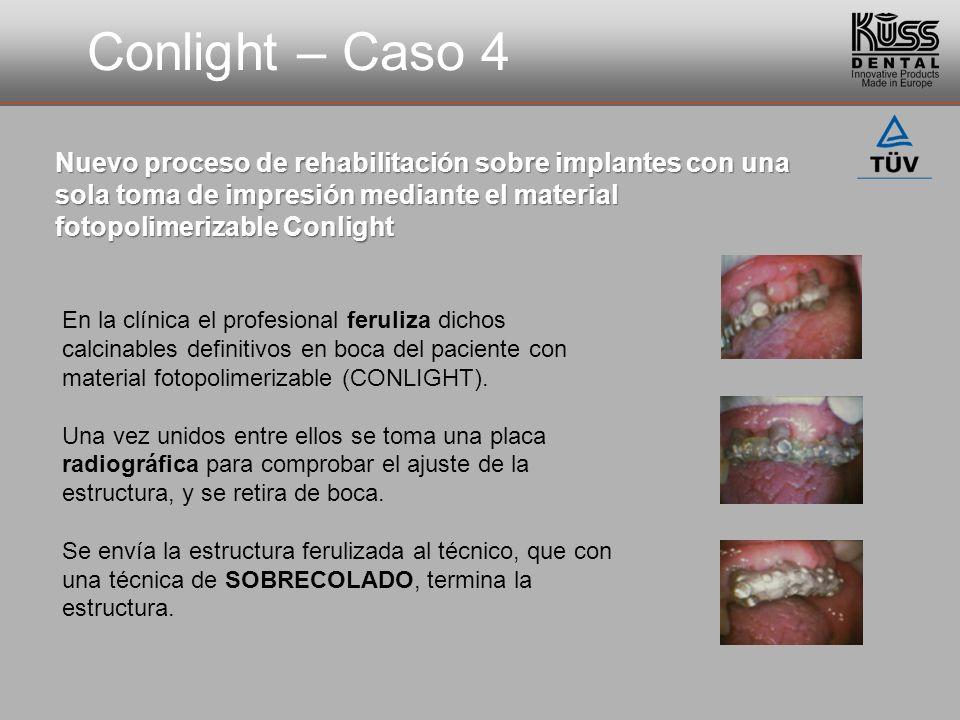 Conlight – Caso 4 Nuevo proceso de rehabilitación sobre implantes con una sola toma de impresión mediante el material fotopolimerizable Conlight.