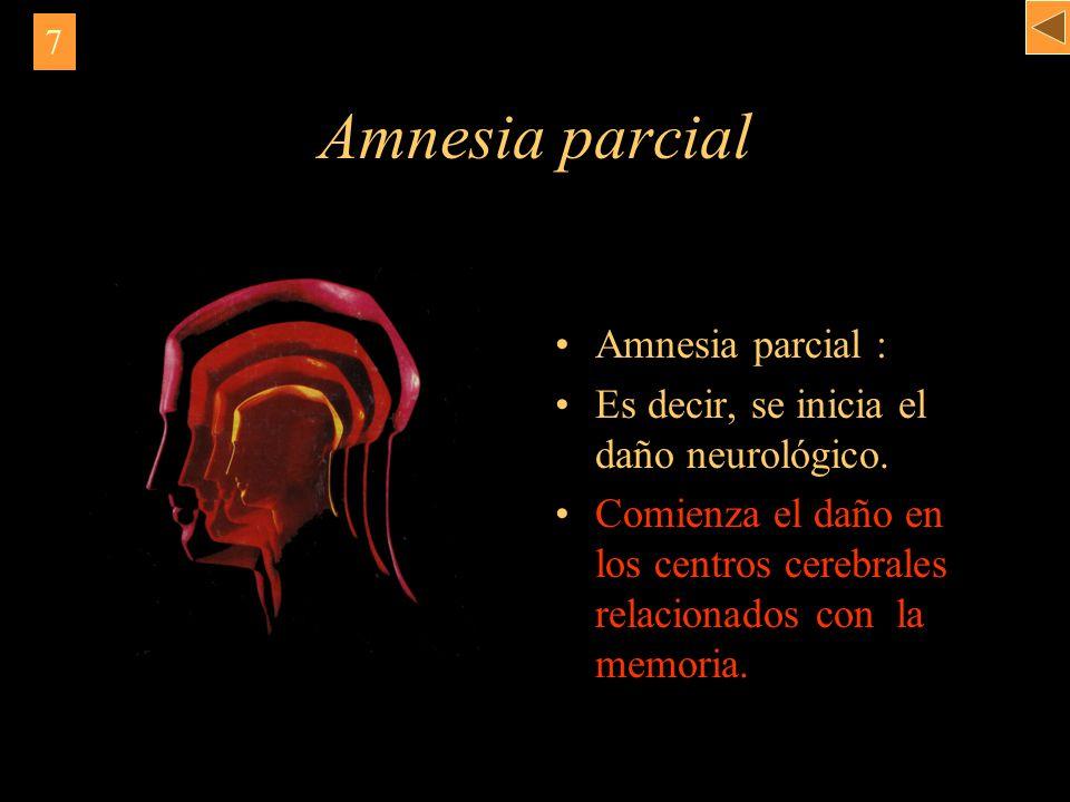 Amnesia parcial Amnesia parcial :