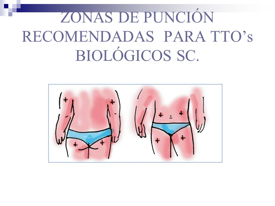 ZONAS DE PUNCIÓN RECOMENDADAS PARA TTO's BIOLÓGICOS SC.