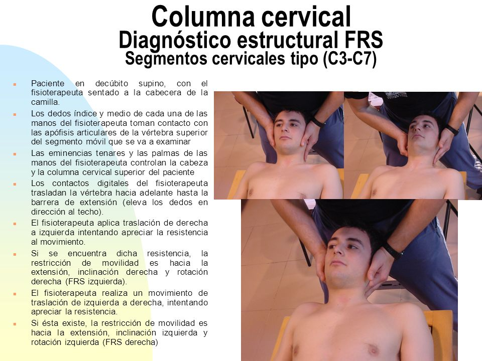 Columna cervical Diagnóstico estructural FRS Segmentos cervicales tipo (C3-C7)