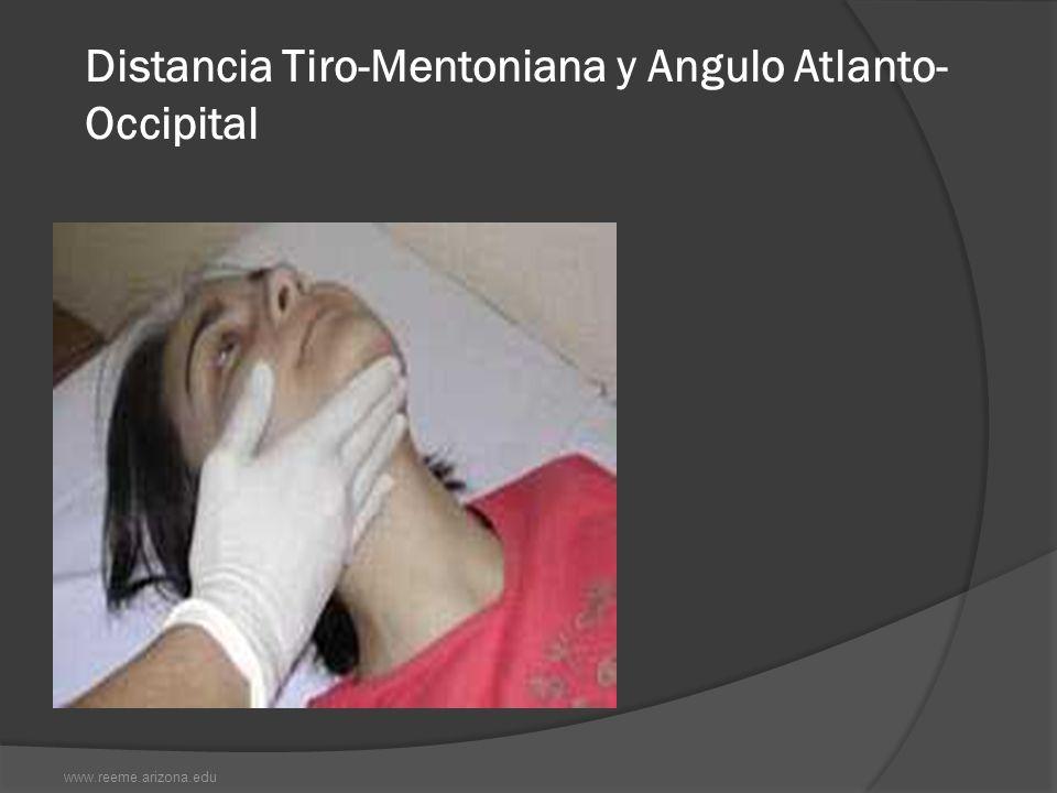 Distancia Tiro-Mentoniana y Angulo Atlanto-Occipital
