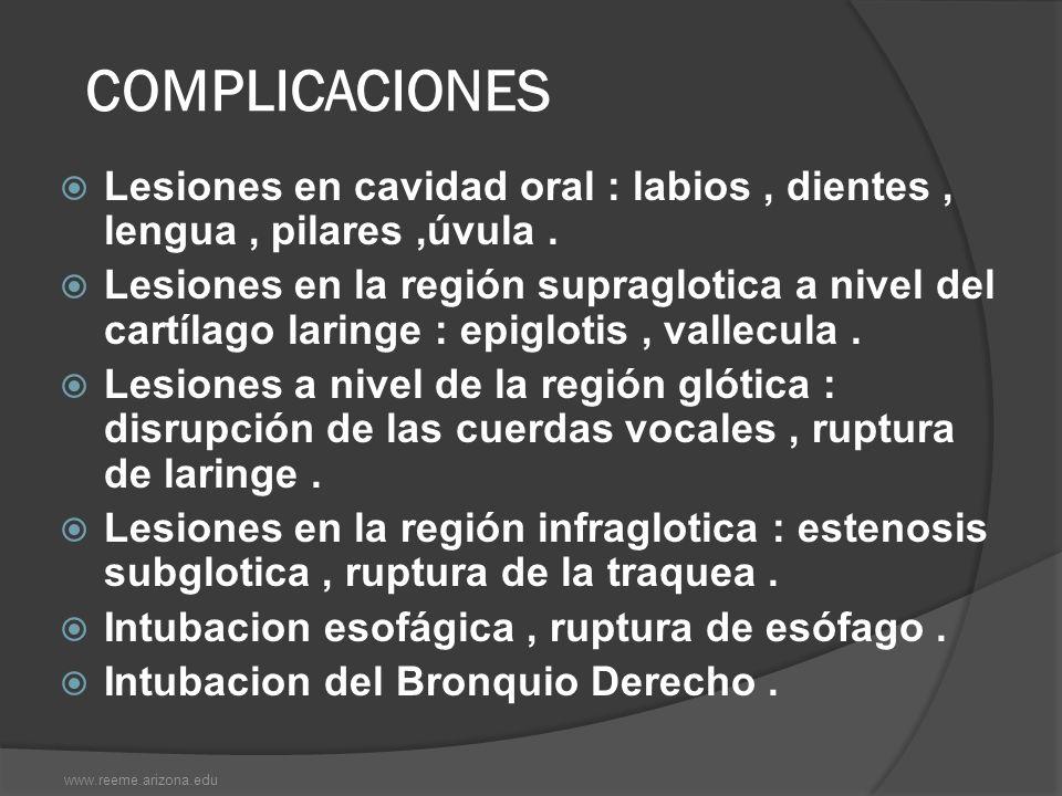 COMPLICACIONES Lesiones en cavidad oral : labios , dientes , lengua , pilares ,úvula .