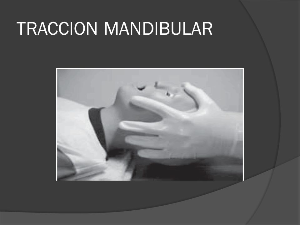 TRACCION MANDIBULAR