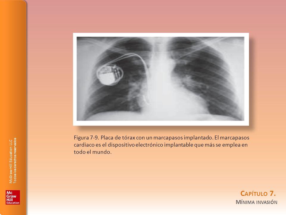 Figura 7-9. Placa de tórax con un marcapasos implantado. El marcapasos