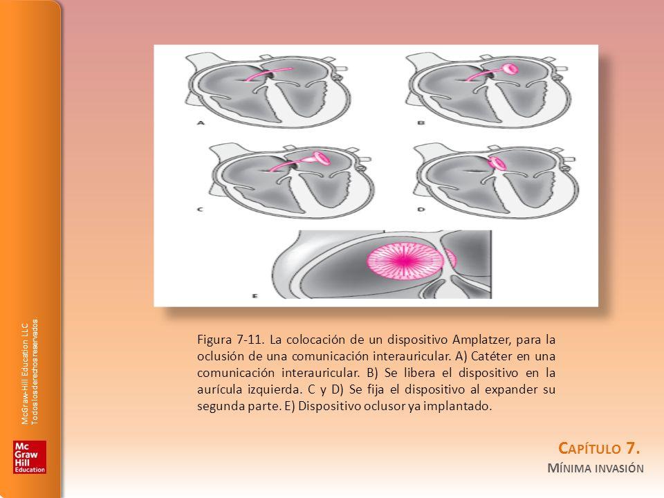 Figura 7-11.