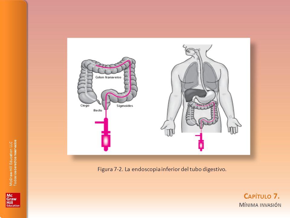 Figura 7-2. La endoscopia inferior del tubo digestivo.