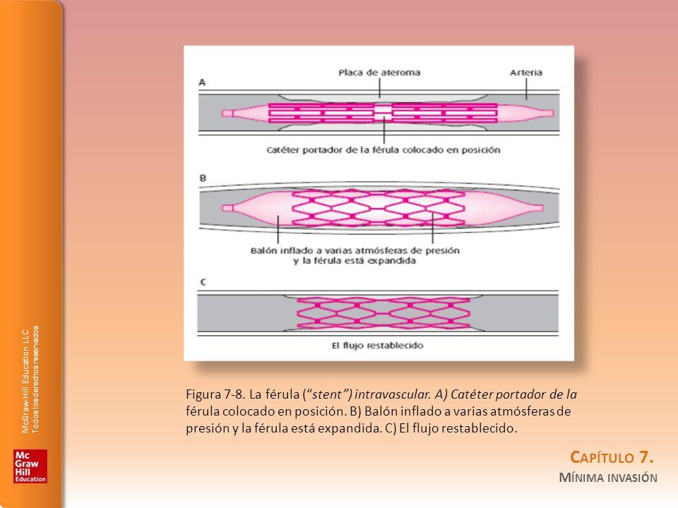 Figura 7-8. La férula ( stent ) intravascular